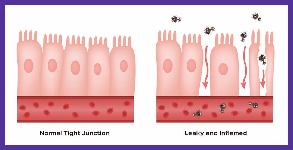 Understanding Autoimmunity. Leaky Gut